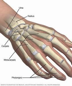 Broken Wrist  Broken Hand - Symptoms And Causes