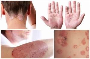 Атопический дерматит отличие от псориаза