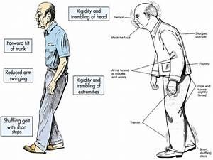 parkinson syndrom symptome