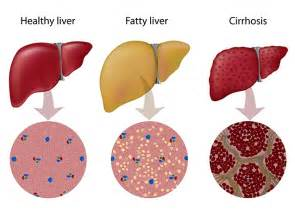 MAT8800 for treatment of fatty liver disease :: Matinas BioPharma ...  Metformin Alcoholic liver disease