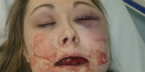 young victim  domestic violence posts   give