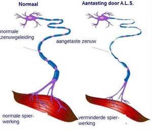 NL versie Microglia