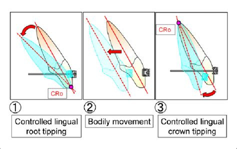 Tooth Movement Diagram by The Type Of Controlled Anterior Tooth Movement