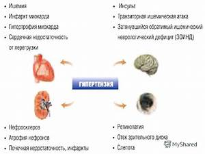 Гипертоническая болезнь клиника лечения