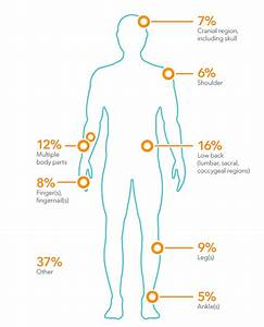 Workplace Injury Body Parts Pictures To Pin On Pinterest