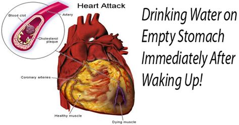 Your diet contains a range of nutrients, including carbohydrates, proteins, fats. Why You Should Drink Water On An Empty Stomach Immediately After Waking Up
