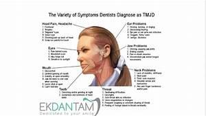 Tmj  Tmd  Temporomandibular Joint  Disorders