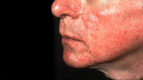 Rosacea Images Rosacea Types Causes And Remedies