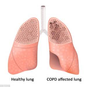 The Lung Disease That Now Affects 1 5m Australians And