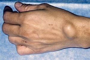Skin Problems  A Visual Guide To Cysts