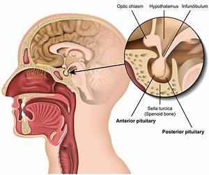 Understanding Pituitary Disorders