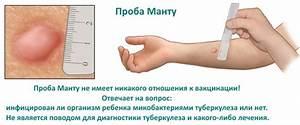Асд 2 от псориаза наружное применение