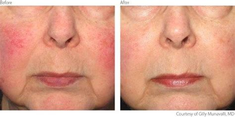 Ipl Treatments For Rosacea Before And After! This Is The. Orthopedic Surgery Job Urgent Care Chicago Il. Health Administration Job Outlook. Shower Glass Doors Cleaning Boston Tax Help. Chronic Pain After Surgery Dentist Woburn Ma. Chicago Electrical Contractor. Add A Shopping Cart To Your Website. Online Masters Of Library Science. Are 529 Plan Contributions Tax Deductible