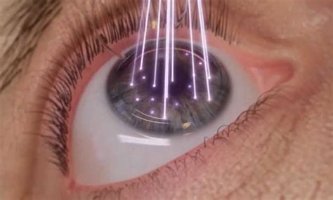 Scientific Strides For Lasik Eye Surgery After 25 Years. New Laptops Under 300 Dollars. Jewelry Store Business Plan Car For Causes. Rapid Prototyping Services Crm Software Free. Green Mountain Flavors Colleges On West Coast. Plastic Surgeons In Scottsdale Az. Alcoholism And Substance Abuse. Franklin Mortgage And Investment Company. Nutrition Exchange List Web Enabled Telephone