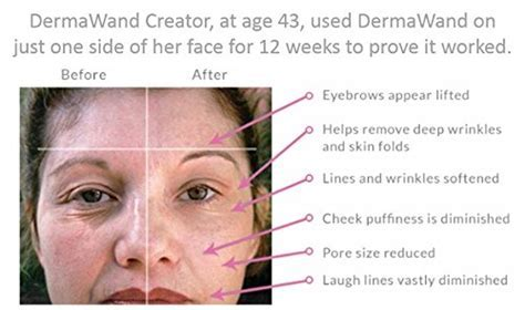 DermaWand Skin Quench Kit   REDUCES WRINKLES   Buy Online