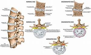 Spine And Intervertebral Disc Anatomy In Sagittal And