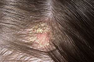 Dry Itchy Scalp Dandruff Eczema Or Psoriasis