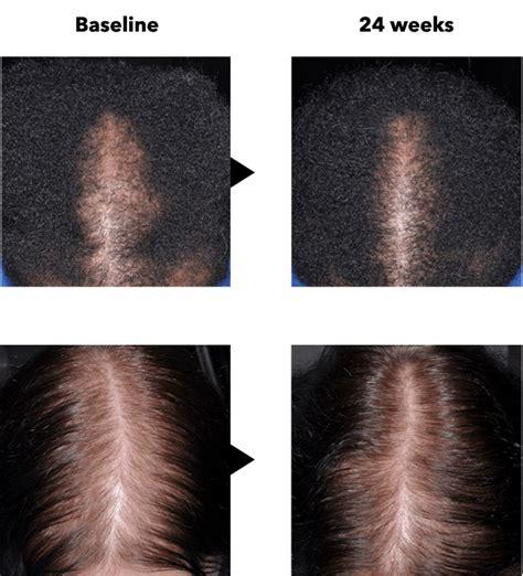 marazzi tile dallas hours 100 walgreens minoxidil foam 5 hair mens hair