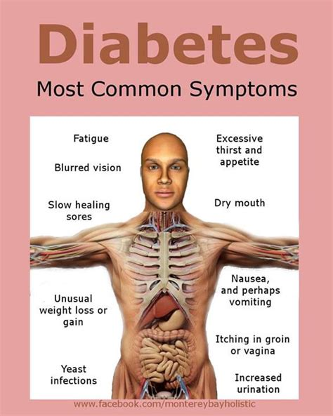 What Are Symptoms Of Diabetes?  Monterey Bay Holistic. Claustrophobia Signs. Seasonal Allergy Signs. Hand Painted Signs Of Stroke. Air Bronchogram Signs. Pll Character Signs Of Stroke. Cupcake Signs. Activity Signs Of Stroke. Fall In Love Signs
