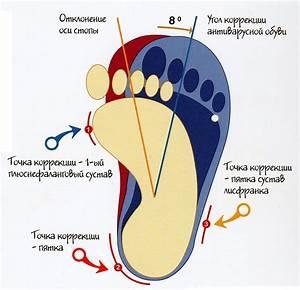 Грибок ногтей на ногах как лечить в домашних условиях