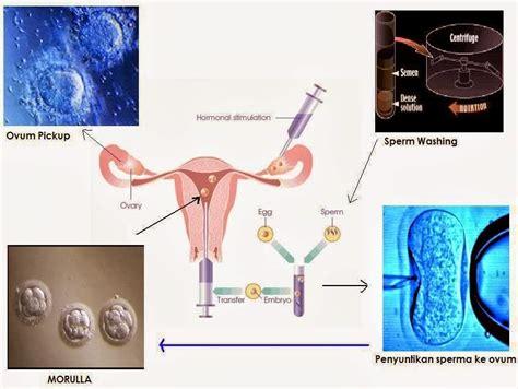 Cara Agar Tidak Hamil Makan Apa Proses Menunggu Setelah Transfer Embrio Bayi Tabung Cara