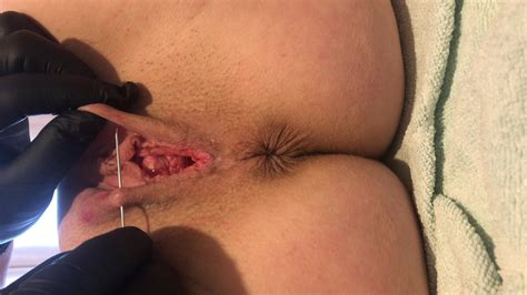 Needle Pussy Torture Slave Bitch Tears Porn 72 Xhamster