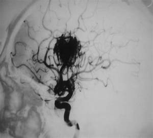 Cerebral Arteriovenous Malformations In Children Homepage
