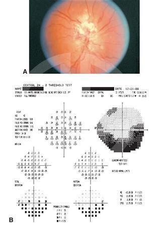 cmv optic neuritis american academy  ophthalmology