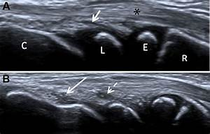 Power Point Design Normative Ultrasound References For The Paediatric Wrist