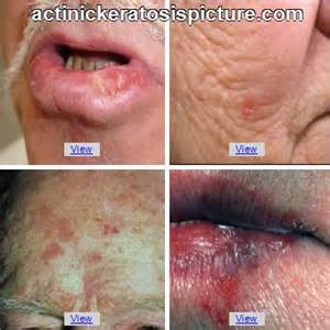 Early Signs Skin Cancer Symptoms
