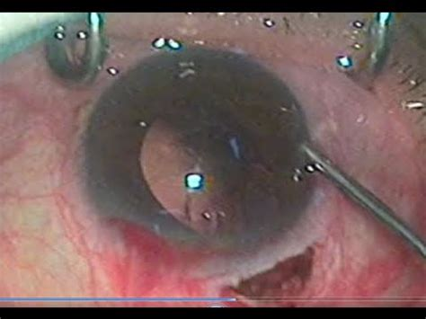 ifis rating management of intraoperative floppy iris ifis
