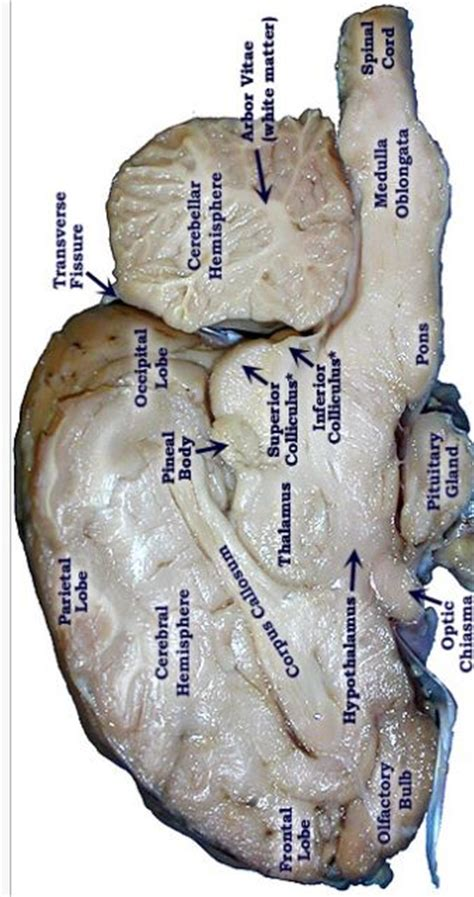 pretty good picture   sheep brain labeled anatomy