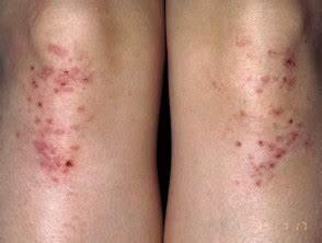 Dermatitis herpetiformis | DermNet NZ
