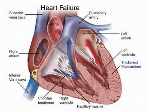 asuhan keperawatan heart failure