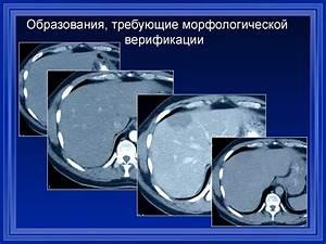 Нормализации функции печени и поджелудочной железы