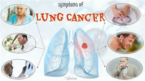 10 Early Symptoms Of Lung Cancer In Men And Women. Aluminium Window Logo. Medical Murals. Tree Branch Stickers. Ketosis Signs. Eye Signs. Halloween Stickers. Reading Decals. Stark Banners