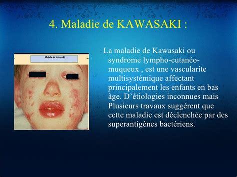foto de Maladies dermatologique et cavite buccale