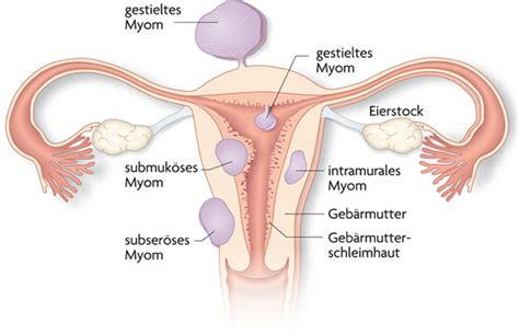 schwanger werden direkt nach der periode