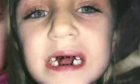 nightmare dentist pulled kids teeth   reason kidspot