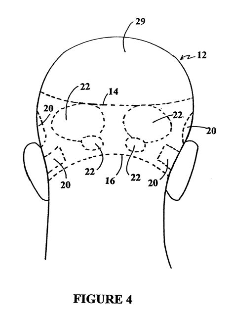 Hair Implants Superior Az 85273 Patent Us6299893 Method To Reduce Hair Loss And