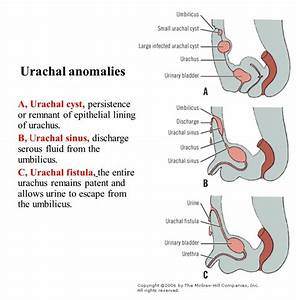 Urachal Anomalies     Dripping Of Urine From Umbilicus On