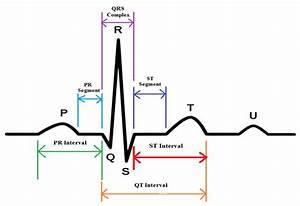 4  Schematic Representation Of Normal Ecg Waveform