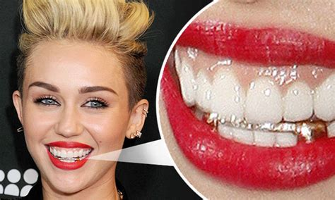 miley cyrus boldly posts dental  rays  solicits advise