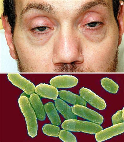 clostridium botulinum treatment