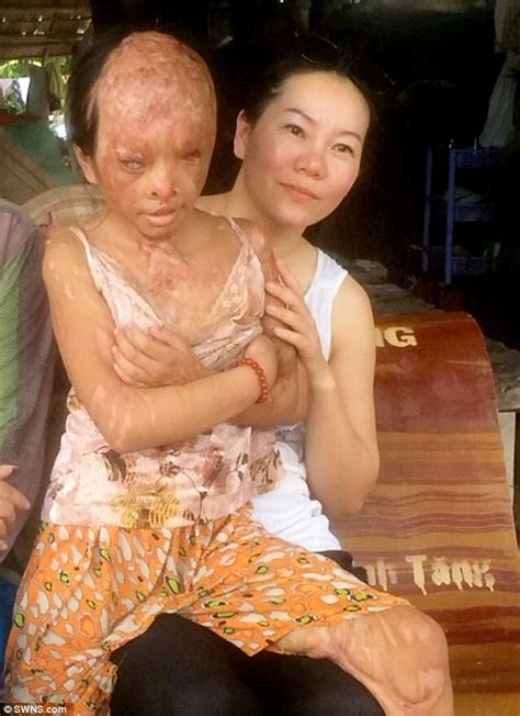 Vietnamese Girl Suffered Horrible Injuries From An Acid