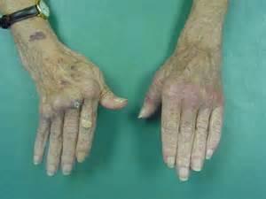 Rheumatoid Arthritis Hand Joints