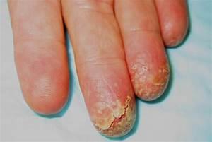 Acrodermatitis Continua Suppurativa Hallopeau =التهاب جلد ...