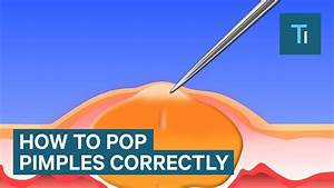 The Only Right Way To Pop Your Pimples