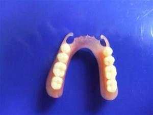Valplast Prothese Abrechnung : decollete valplast haut conseil dentaire dr hauteville ~ Themetempest.com Abrechnung