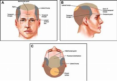 Scalp Anatomy Frontal Surgical Hairline Level Temporal